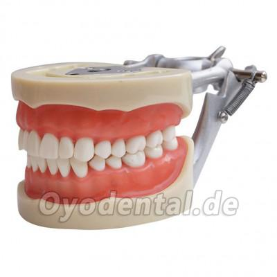 Dental Modell Removable Zähne Teach Studie Adult Standard Typodont Demonstration