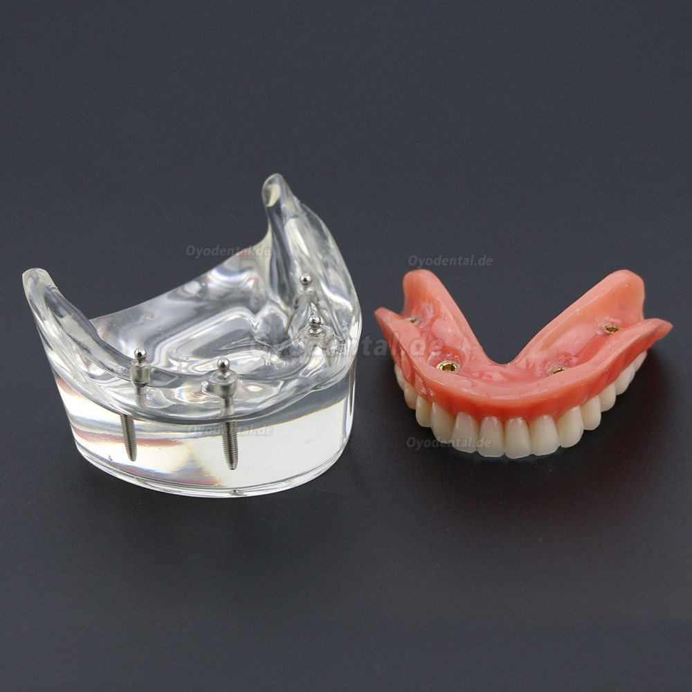 Dental Lower Zähne Demo-Studienmodell 6002 02 Overdenture Unten 4 Implantate